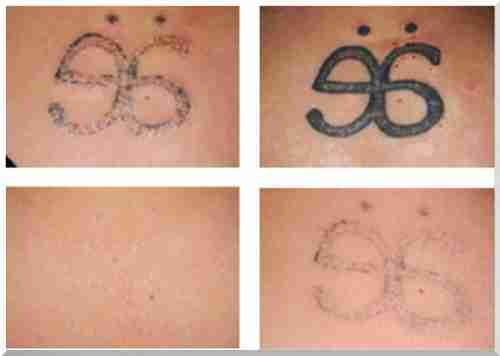 Jak Zrobić Tatuaż W Filmie Domu Bez Blizn Samochód Firmowy